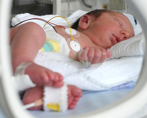 Neonatal Technologies